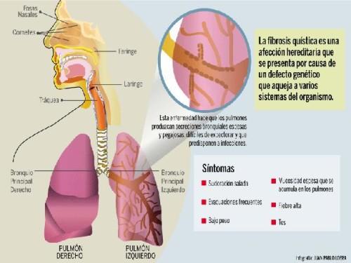 fibrosis quistica - infografias  (3)